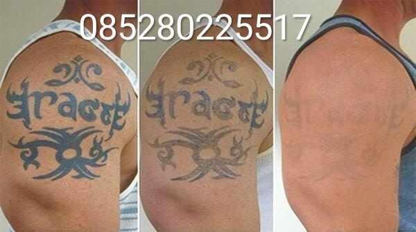 tatto, seni tatto, cara menghilangkan gambar tatto